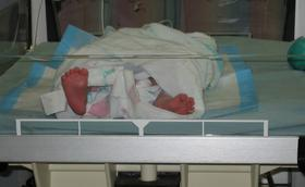 My premature baby