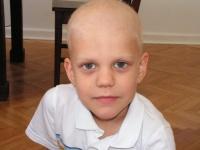 Antek během chemoterapie.